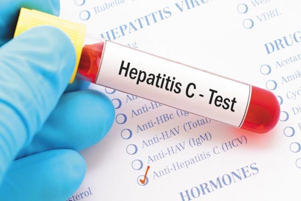 هپاتیت c چیست